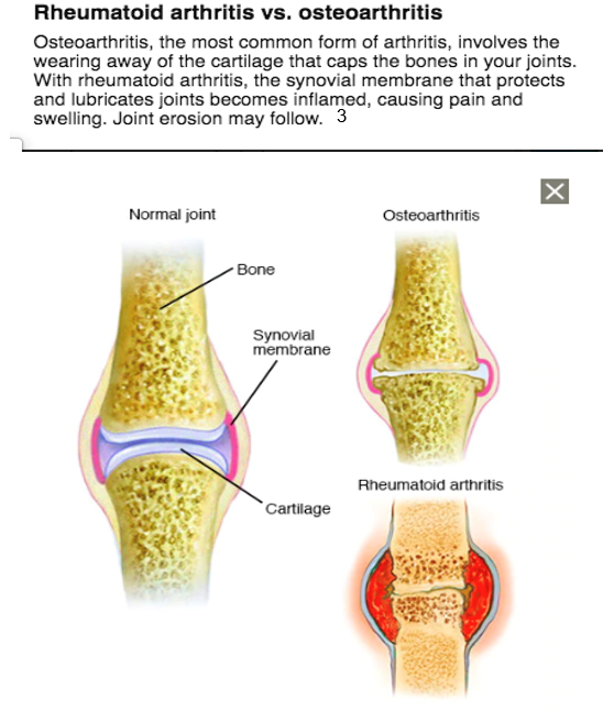 What Is The Difference Between Arthritis And Arthralgia Norflexgel